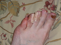 Bloody_foot_004_5
